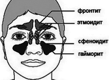 схема носовых пазухов - различие гайморита и фронтита