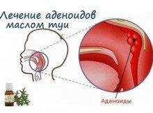 масло туи поможет при аденоидах